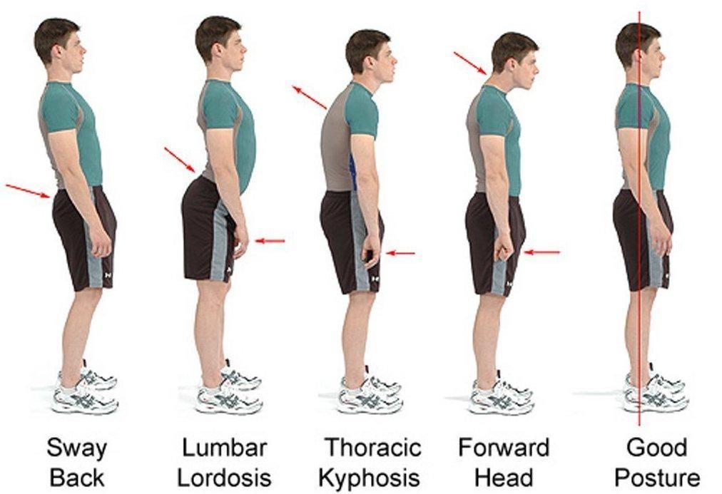 deformities of the spine