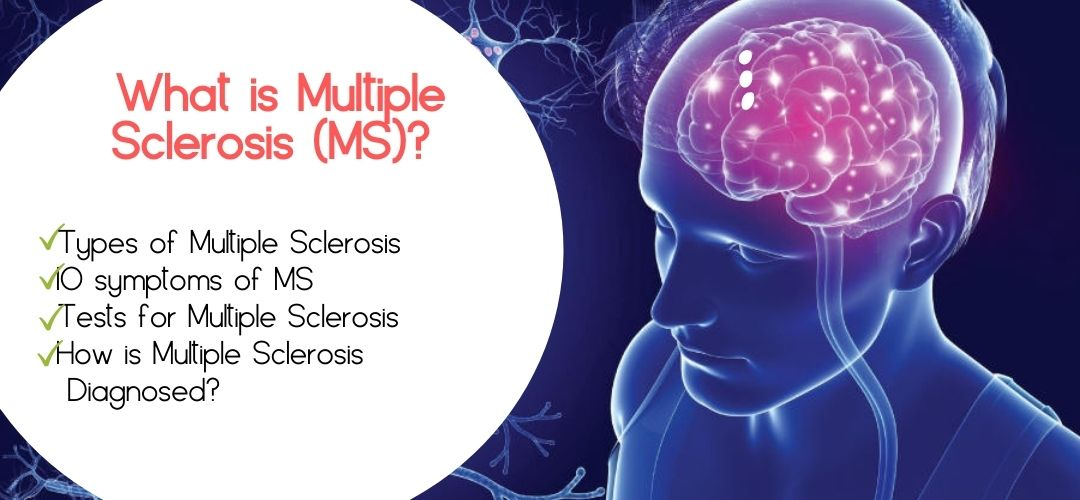 What is Multiple Sclerosis (MS) Types of Multiple Sclerosis
